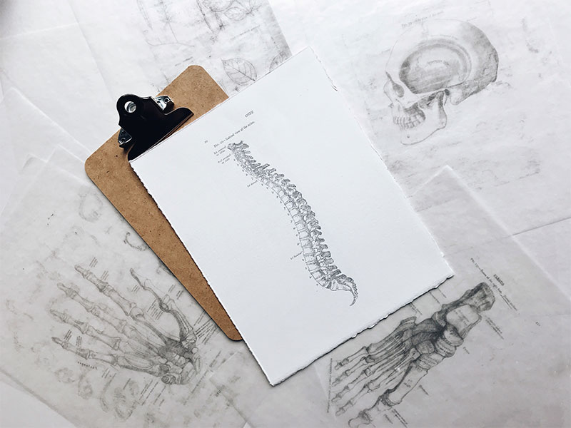resonancia magnética de alto campo para detectar hernias discales en madrid