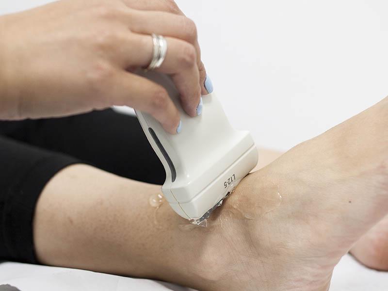 Toda la información sobre la ecografía de tobillo en caso de esguince. Prueba de diagnóstico de las más comunes
