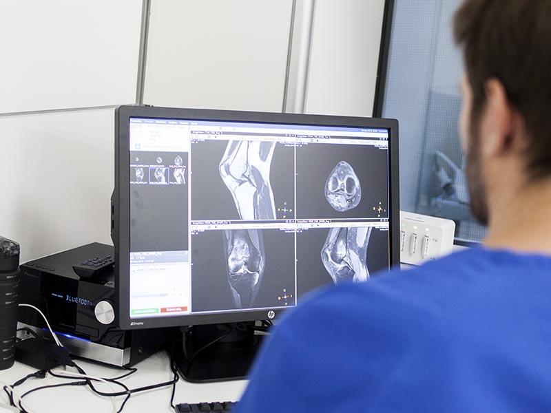 Cómo detectar lesiones de rodilla a partir de una resonancia magnética